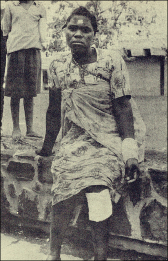Injured rural woman, Mozambique, 1980s